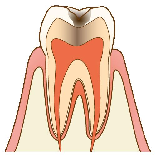 中度の虫歯