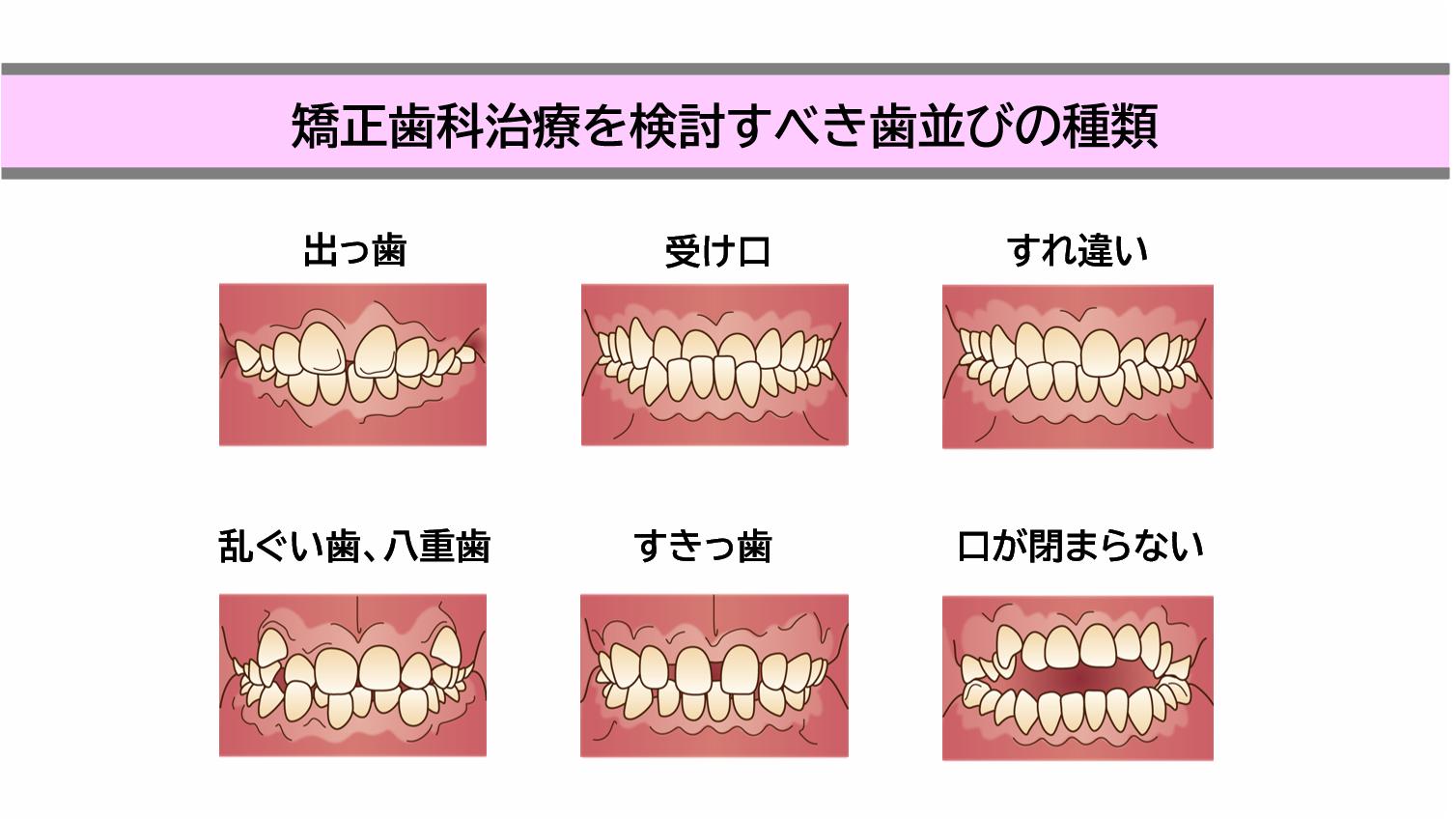 矯正歯科治療を検討すべき歯並びの種類