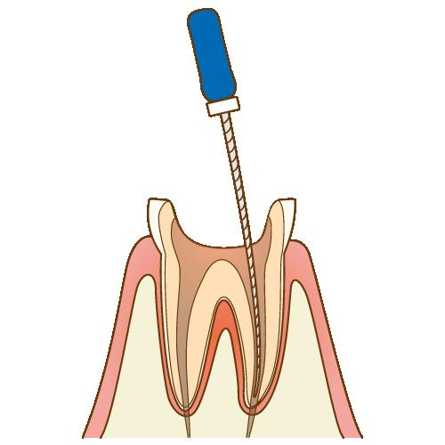 リーマー(ファイル)で細菌に感染した骨髄(神経や血管)を除去し、キレイになった歯