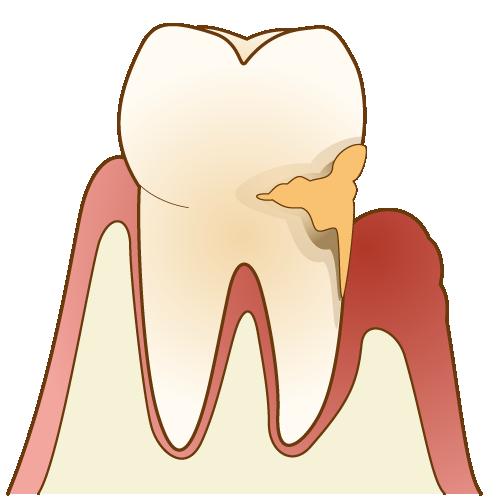 初期の歯周病