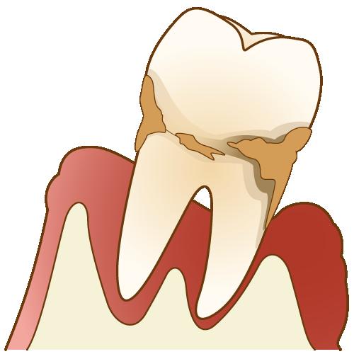 歯周病で歯がグラグラ