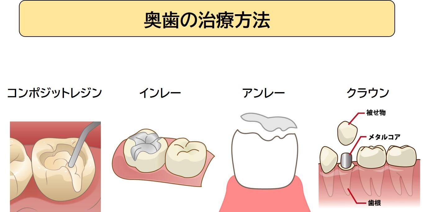 奥歯の治療方法