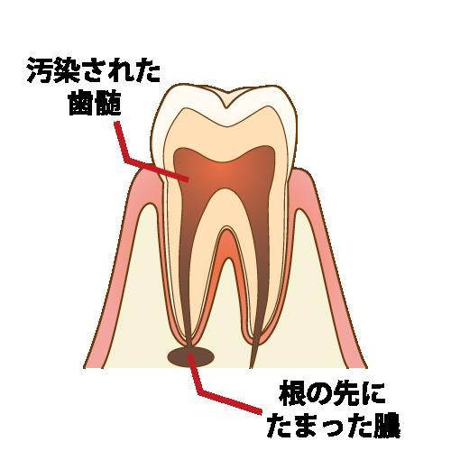 汚染された歯の神経