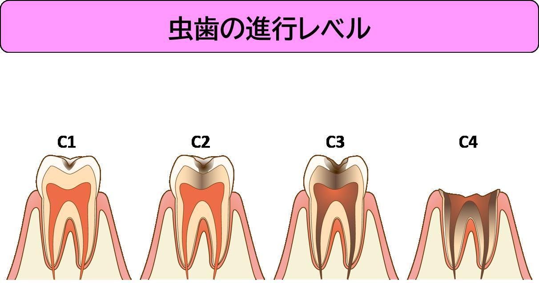 虫歯の進行レベル