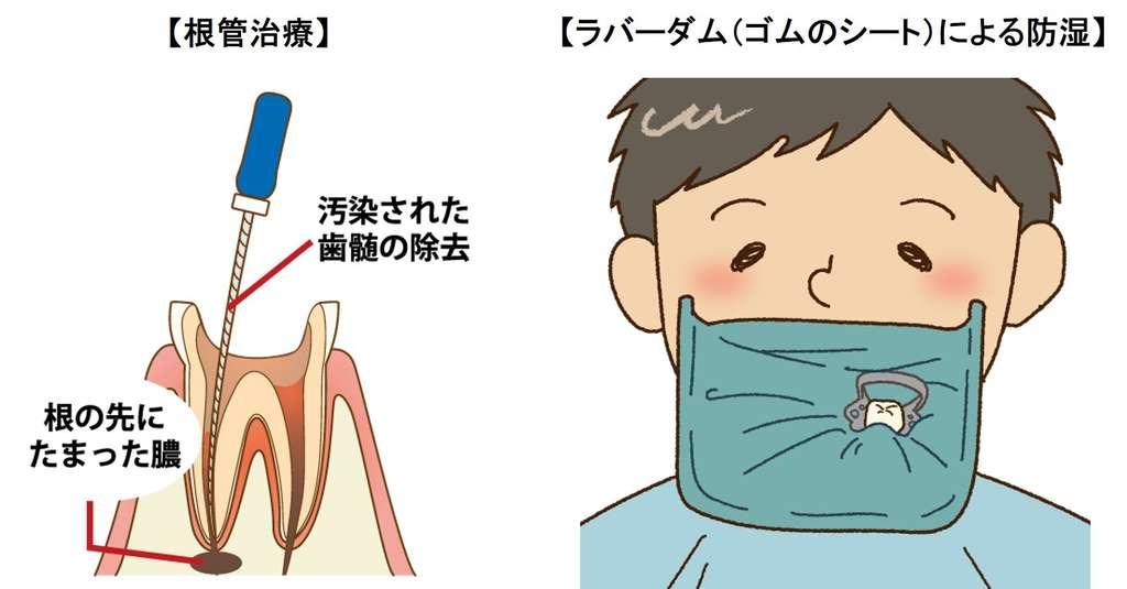 根管治療(抜髄)とラバーダムによる防湿