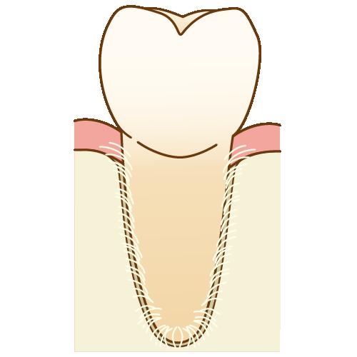 歯が折れた(歯根破折)