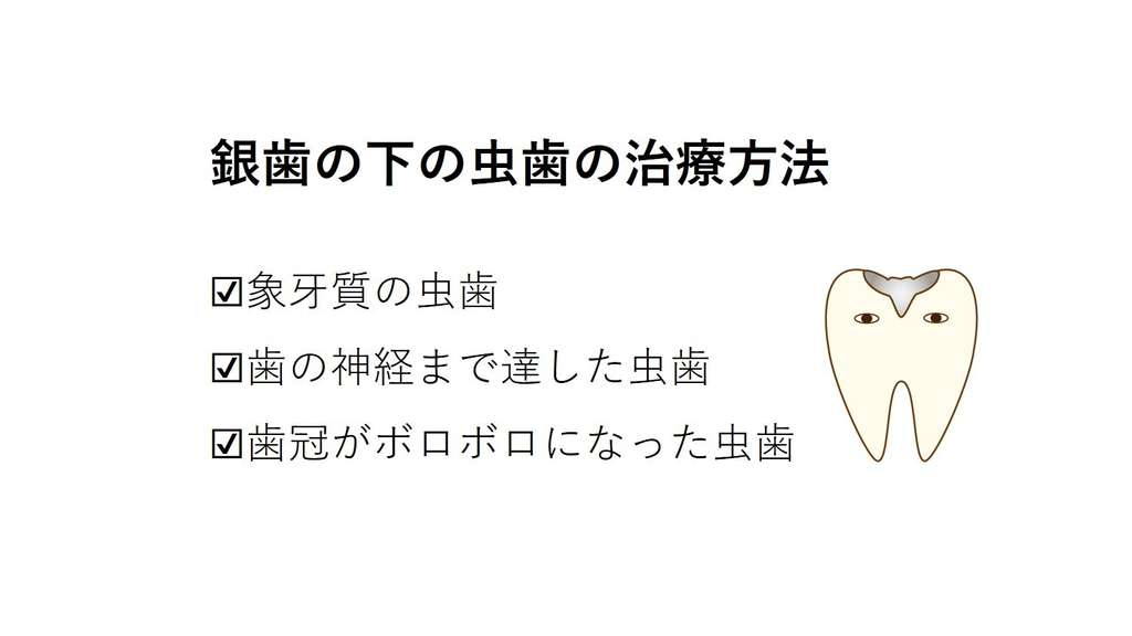 銀歯の下の虫歯の治療方法