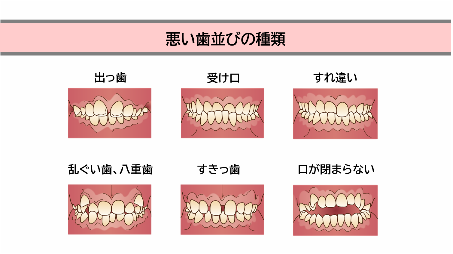 悪い歯並びの種類とその原因と弊害