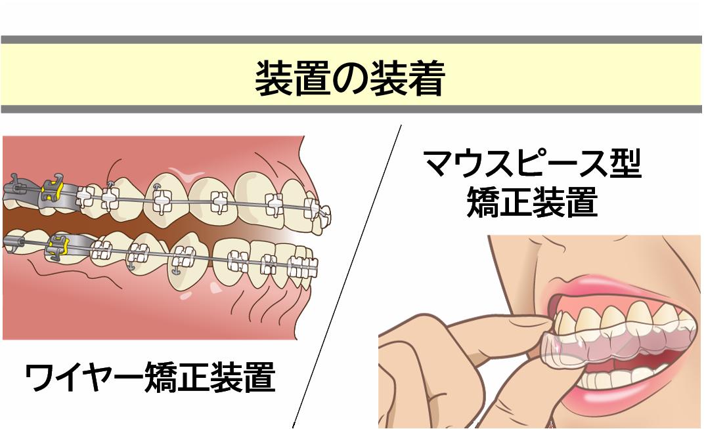 治療STEP3:矯正治療(治療期間2~3年)
