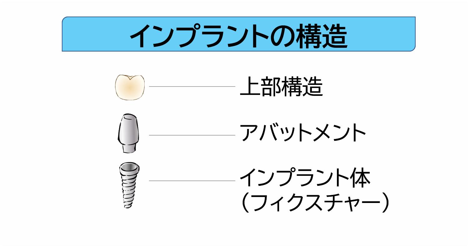 インプラントの構造