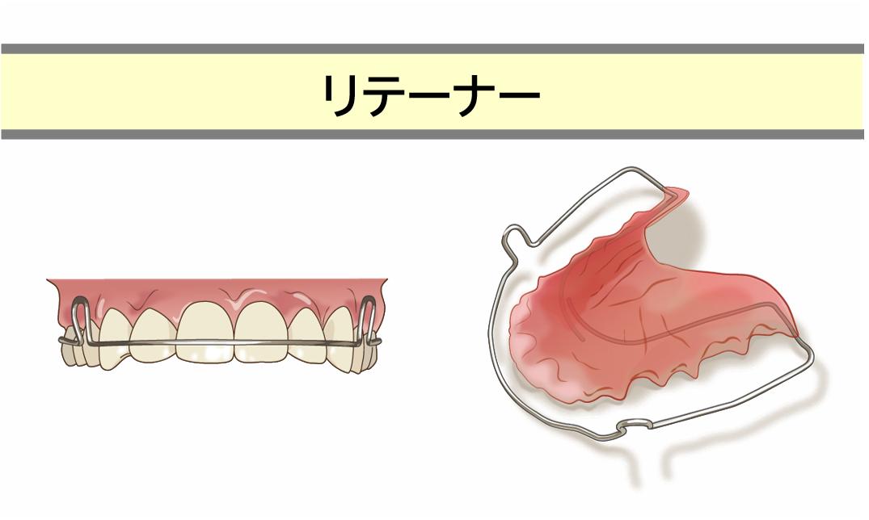 治療STEP4:保定(治療期間2~3年)