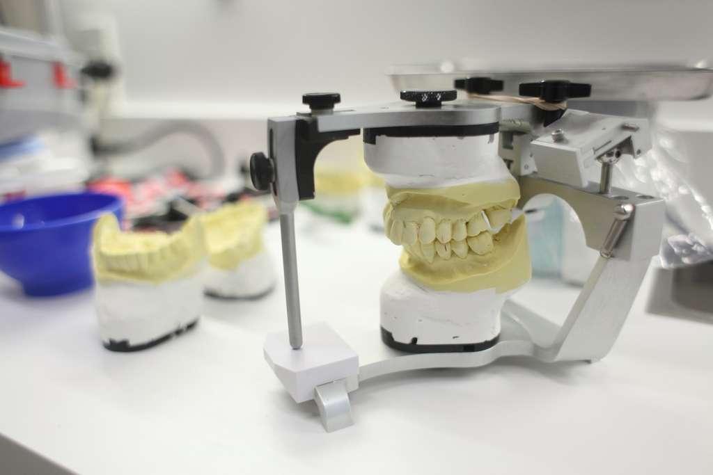 顎の運動や咬み合わせのさまざまな位置を再現するための装置(咬合器)
