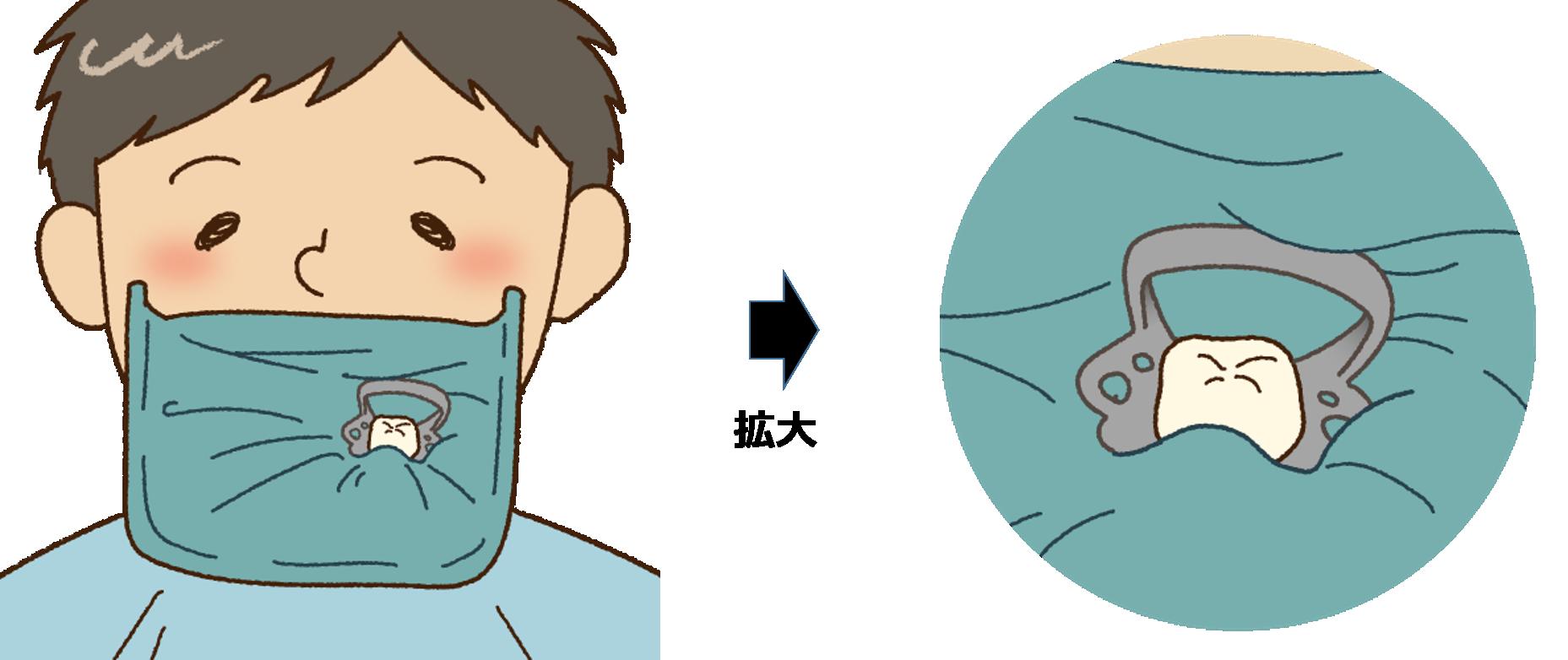 歯の神経の治療で使用するラバーダム
